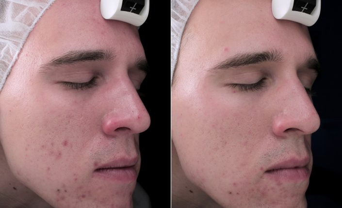 acne-before-pic-1-705x429