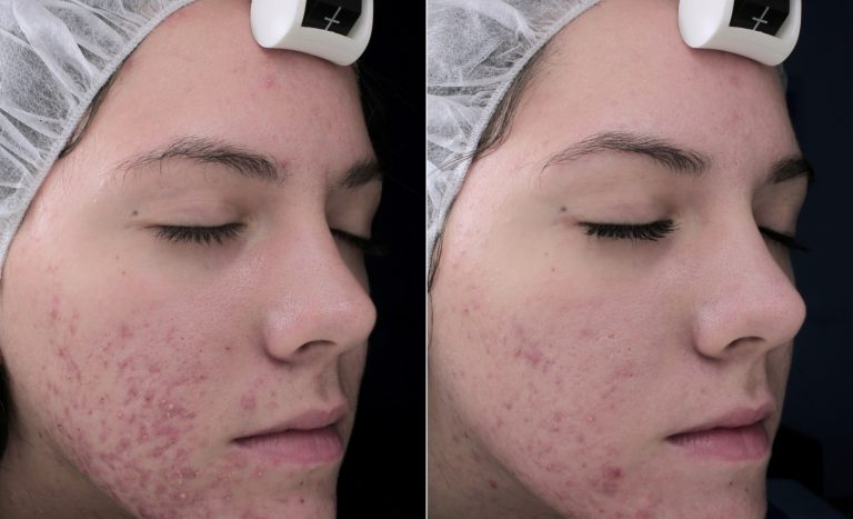 acne-before-pic-2-768x467