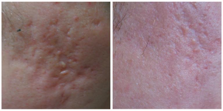 skin-resurface-2-768x384